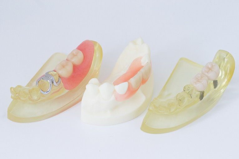 いそむら歯科医院の入れ歯治療
