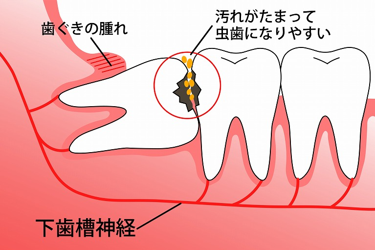むし歯や歯周病が進行している